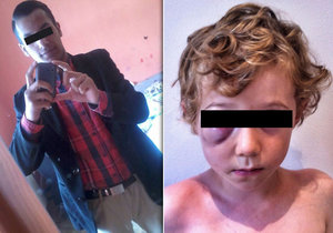 Nevlastní otec měl chlapečka (†3) umlátit k smrti! Týral ho dlouho, tvrdí místní