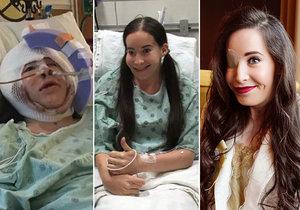 Ivana Danišová se narodila bez pravé půlky tváře, nyní ji čeká poslední operace.