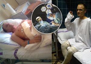 Štěpán Kadlec prodělal ve 25 letech transplantaci jater, záhy na to i encefalitidu. Dnes se snaží pomáhat dětem, ke kterým osud nebyl zrovna tak vlídný, jako k němu samotnému.