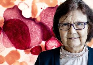 Paní Radomíra trpí mnohočetným myelomem.