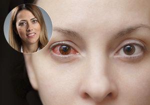 V momentě, kdy se alergeny dostanou do očí, způsobí podráždění oční spojivky, která se zanítí.