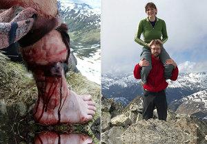 Andiho v rumunských horách napadl medvěd. Turista se štěstím přežil.