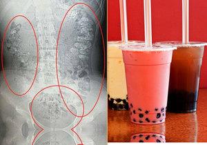 Dívku (14) trápily ukrutné bolesti břicha! Lékaři jí v břiše našli 100 kuliček z bubble tea