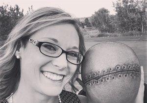 Ženě odoperovali několik nádorů na mozku. Její manžel si na hlavu nechal vytetovat stejně velkou jizvu.