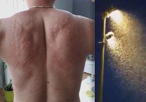 V Chorvatsku se přemnožili komáři.