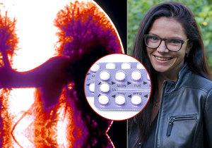 Zdravotní potíže Zuzany Dvořákové odstartovalo užívání hormonální antikoncepce.