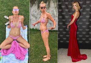 Tereza Fajksová stále vidí na svém těle nějaké chybičky...