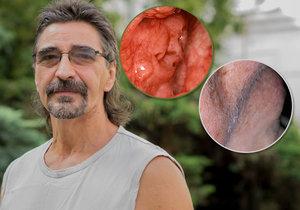Zdeněk přežil rakovinu a lékaři mu zachránili i tvář.