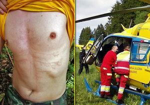 Turisty v Tatrách zabil zásah blesku: Chlapce (†13) se lékařům nepodařilo oživit
