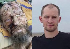 """""""Muž z medvědího brlohu"""" zemřel: Podlehl ošklivé infekci."""