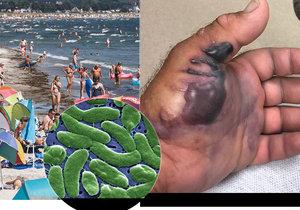 Nebezpečí nákazy masožravou bakterií hrozí i na Baltu.