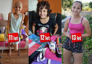 Pohlednicová Lenička (13): Rakovinu přemohla, chemoterapie jí ale vzala zdraví, přesto je šťastná