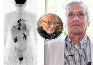 Stanislav Bárta onemocněl zhoubným lymfomem před padesátkou. Non-Hodgkinovým lymfomem trpěl i Karel Gott.