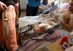 Z vlastní stehenní kosti si nechal udělat nůž: Lékaři mu řekli, že už nikdy nebude chodit