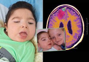 Pavlíkovo onemocnění se nazývá Westův syndrom.