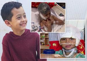 Chlapce pokousal při hře pitbul: Utrhl mu uši a skalpoval ho