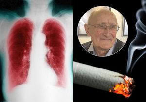 Pan Zdeněk si kouřením zcela zdevastoval plíce. Projevila se mu chronická obstrukční plicní nemoc (CHOPN).