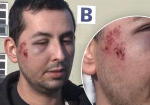 Hasiče Tomáše brutálně napadli v Děčíně: Zaútočili na něj kusem betonu