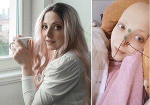 Anička Slováčková bojuje s rakovinou