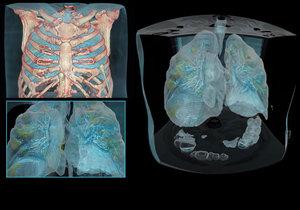 Jak vypadají plíce poškozené koronavirem? Lékaři vytvořili model plic nemocného pacienta