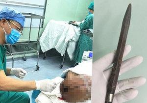 Operace trvala dlouhé tři hodiny!
