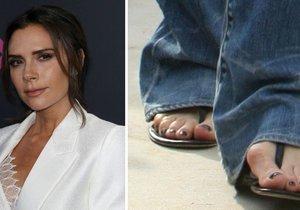 Vady na kráse: Celebrity, které se za ně nestydí!