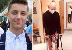 Sebík (15) kvůli rakovině přišel o nohu: První krůčky s protézou! Lidé mu ve sbírce poslali přes milion