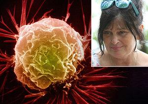 Eleni Zíková má nevyléčitelnou rakovinu prsu. Pomohla jí moderní léčba