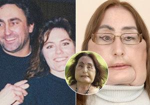 Connie Culp znetvořil vlastní manžel, v roce 2008 prošla náročnou transplantací obličeje. Nyní v 57 letech zemřela.
