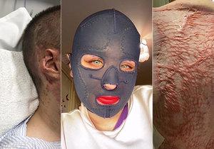 Výbuch sopky jí vzal tátu, sestru i obličej. Stephanie poprvé ukázala popálenou tvář