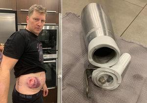 Zdeňka zranil nebezpečný šlehačkovač! Explodoval mu v ruce, jen kousek od jeho dětí