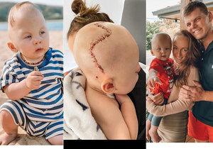 Miminku museli po narození rozříznout lebku: Chlapeček má teď neobvyklý tvar hlavy