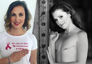 Nikola Samková helps young women with breast cancer.