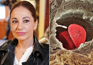 Hope for women with breast cancer: Actress Michaela Kuklová also underwent genomic testing