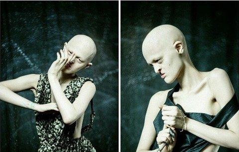 Nejošklivější modelka na světě Melanie Gaydos trpí vzácnou chorobou, a přesto je za hvězdu!