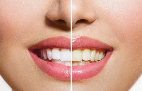 Zažloutlé zuby od kávy a čaje? Víme, jak je vybělit!