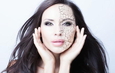 I v zimě vaše pleť trpí: 5 rad, jak o ni pečovat, abyste měli tvářičku jako broskvičku