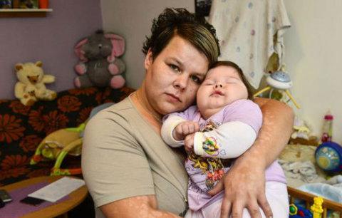 """Holčička se měla narodit zdravá, ale je postižená: """"Spící panenka"""" je vzhůru jen 15 minut denně"""