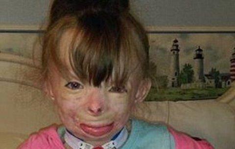 Popálená holčička nejen přišla o rodiče, ale lidská hyena ji i okradla o peníze