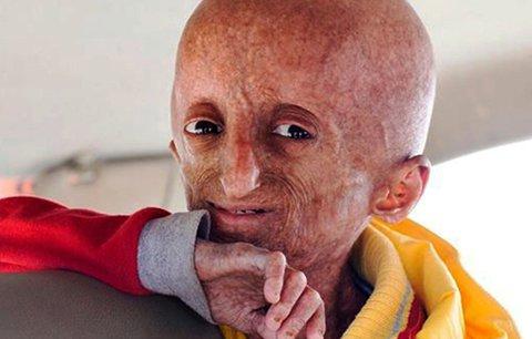 Chlapce (†15) zabila nemoc důchodců: Stárnul až osmkrát rychleji