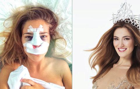 Česká Miss 2016 Andrea Bezděková: Jen 83 dní po zvolení šla a plastiku!