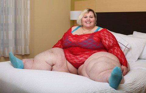 Žena s nejširšími boky na světě tvrdí: Za mou nadváhu nemůže jídlo, ale štítná žláza!