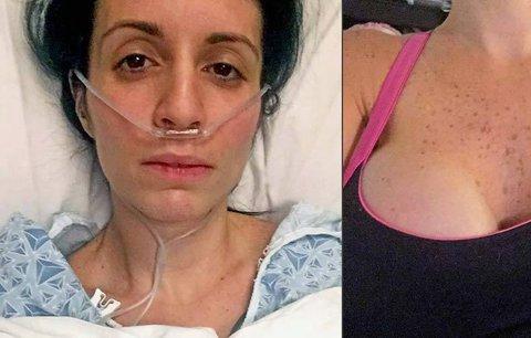 Žena si nechala udělat piercing v bradavce: Přišla kvůli němu o prso