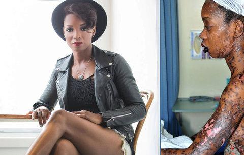 Slavná zpěvačka krůček od smrti: Tohle s ní udělala antibiotika!