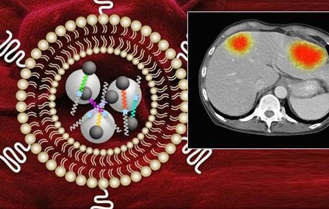 S léčbou rakoviny mají pomoci nanosenzory. Ukáží, jak se daří ničit nádory