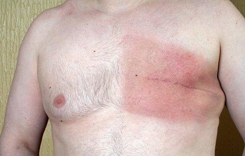 Karel (72) si našel bulku v prsu: Muži si riziko rakoviny často nepřipouští
