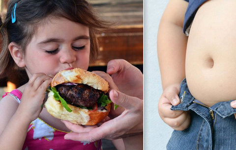 Počet obézních dětí v Česku roste: Jsou šikanované, hrozí jim i předčasná smrt