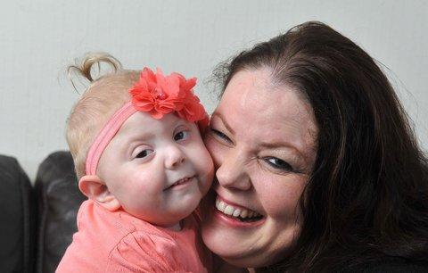 Clara (2) má vzácnou genetickou poruchu. Matka jí sepsala dojemný seznam přání