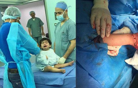 Čeští machři z Bulovky v Jordánsku: Operovali Mohammadovi (5) »koňskou« nohu!