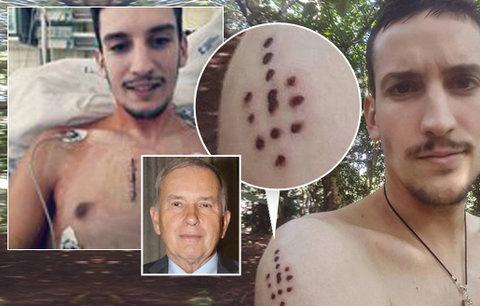 Drsná slova onkologa o šamanské léčbě rakoviny: Indiáni Petrovi nepomohou!